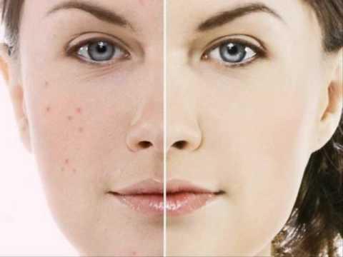 หน้ากากธรรมชาติใบหน้าขาวสดใส