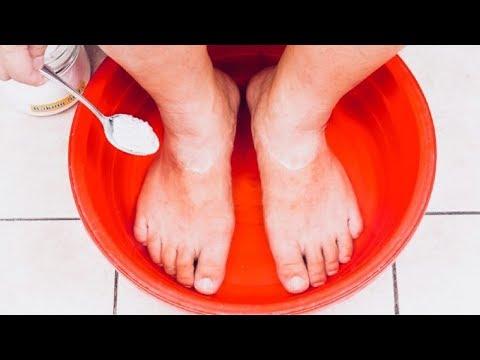 Foot litrato fungus paa ng paggamot