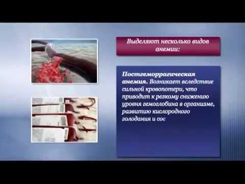Анемия. Симптомы и виды анемии