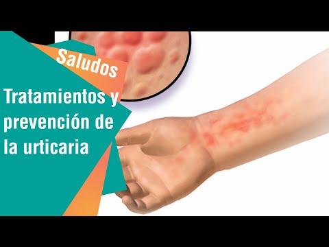 Skipidarnye los baños de la psoriasis las revocaciones