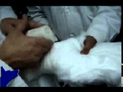 Ejercicio de la fisioterapia en el tratamiento de la hernia vertebral