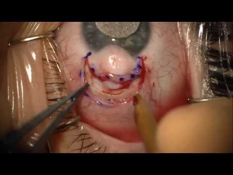 Limbal Dermoid Removal