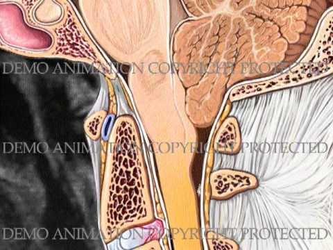 Mis on üle vererõhku chem