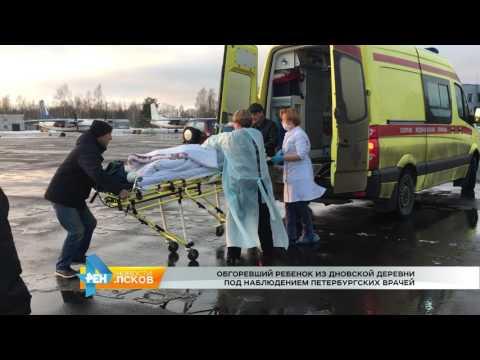 Новости Псков 23.01.2017 # Обгоревший ребенок доставлен в Санкт-Петербург