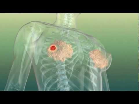 Implanty die Brüste wieviel stehen die Jahre