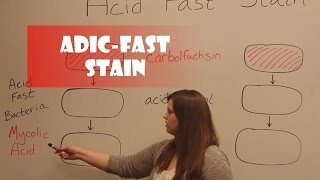 Acid-Fast Stain