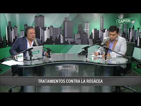Tratamientos contra la Rosácea. Cara Roja Lima Perú 2017