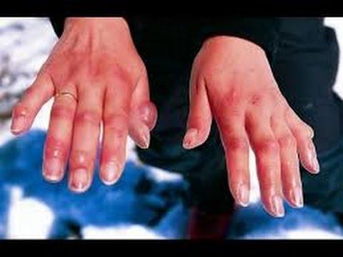 Как лечить опухшие пальцы