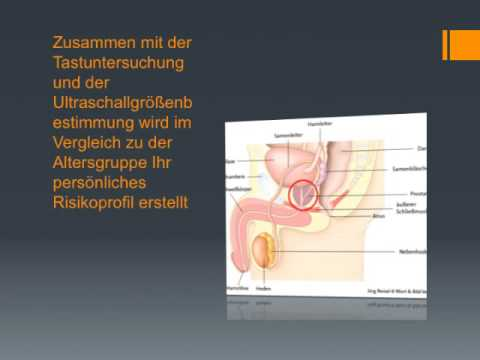 Sex Prostata Geheimnis Video