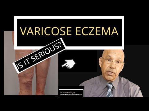 Ce varicoză inițială