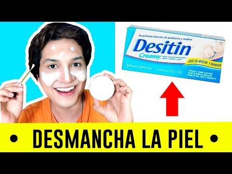 DESMANCHAR LA PIEL CON ÓXIDO DE ZINC REMEDIO CASERO| DESITIN | ACNE | CICATRICES | AndyZaturno