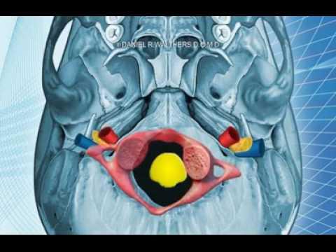 Esercizi a nuclei di ernia pulposi di reparto lombare e osteochondrosis