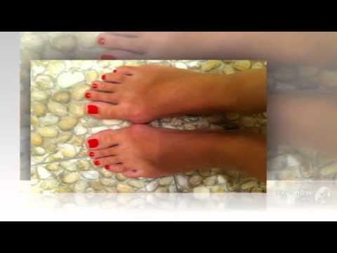 Шишки на пальцах ног картинки