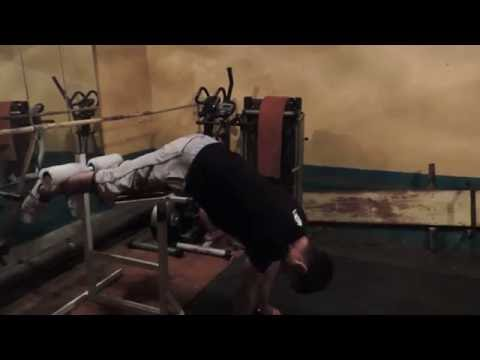 травма плеча. разрыв сухожилий. подостная, надостная мышца. падение на горных лыжах