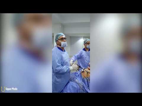 أهم خطوتين لضمان نجاح تكميم المعدة | دكتور عبد الرحمن الغندور