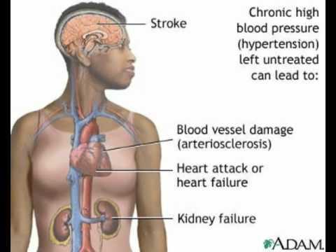 Was mit einer kleinen Pause in dem Blutdruck zu tun