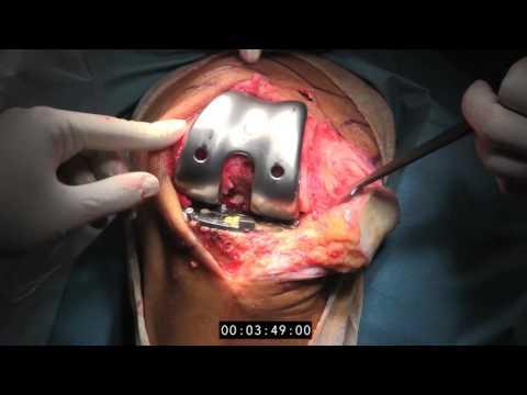 Intervención Quirúrgica | Cirugía ortopédica