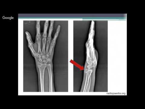 """Вебинар """"Рентген семиотика повреждений лучезапястного сустава и запястья"""""""