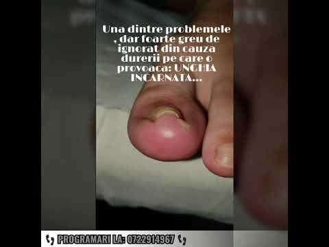 Artrita articulațiilor piciorului provoacă