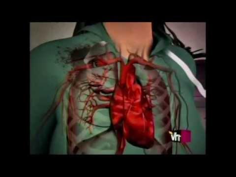 Los centros de la cirugía plástica el aumento del pecho