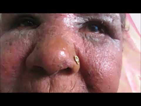 Trattamento nazionale di posizione di eczema