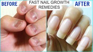 How To GROW Long Strong Nails Fast At Home | SuperPrincessjo
