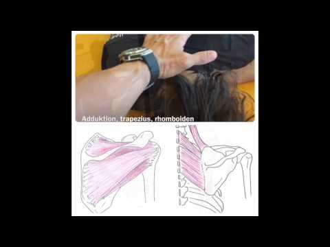 Rückenschmerzen, die ärztlich behandelt werden sollen,