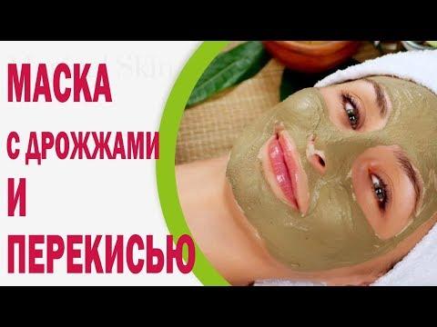 Причина появления пигментных пятен на лице и их лечение