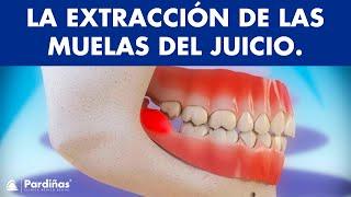 Pericoronaritis y extracción de las muelas del juicio ©