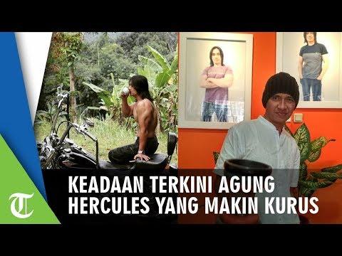 Keadaan Terkini Agung Hercules yang Makin Kurus karena Melawan Penyakit
