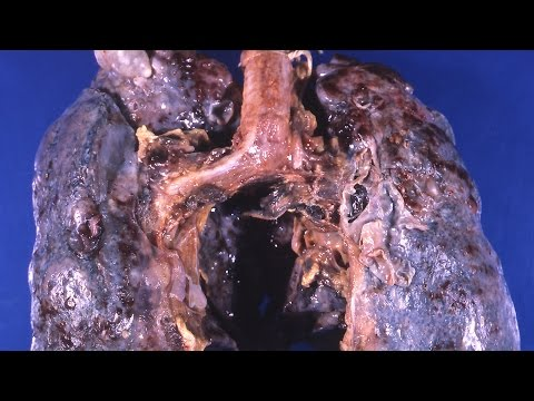 Video Emphysema. Symptoms and treatment of COPD
