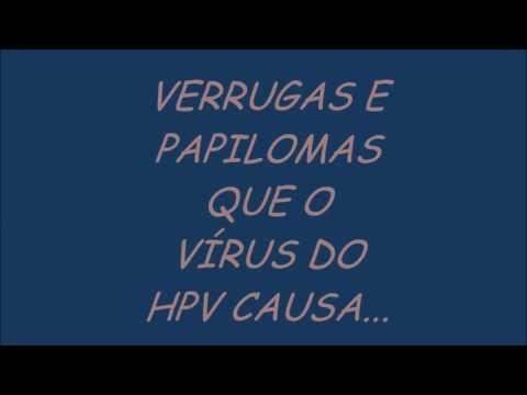 Cancerul hpv