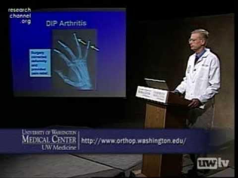 Wie lange dauert es Massage Osteochondrose nehmen