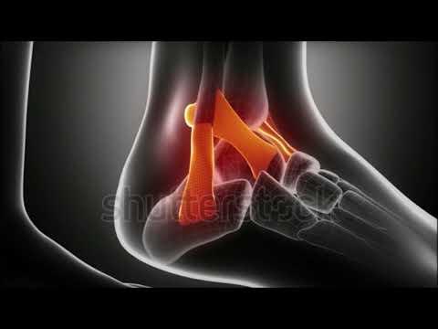 Unguent de artrită pentru articulații