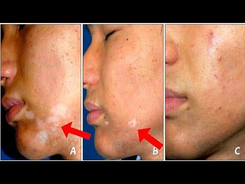 Dieta di hypoallergenic a eczema microbico