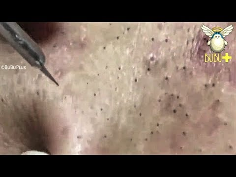 CYSTIC ACNE, BLACKHEADS, WHITEHEADS AND PIMPLES EXTRACTION ACNE TREATMENT 181229!