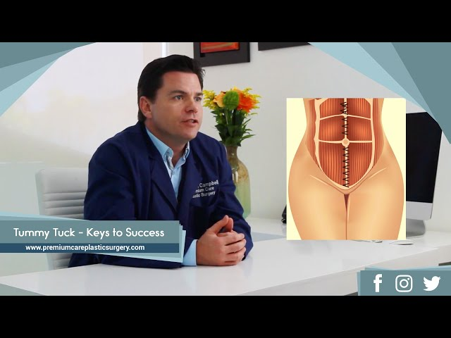 Tummy Tuck Keys to Success