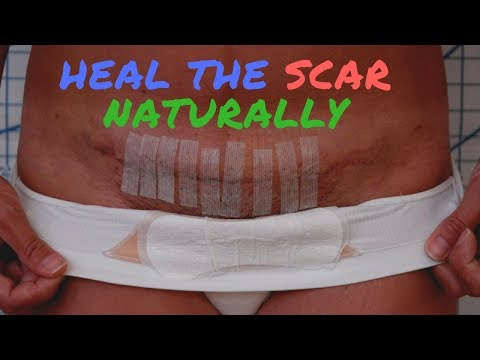Video How to Get Rid of C-Section Scar Naturally?