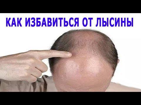 Balsam dla wypadanie włosów 101 opinie