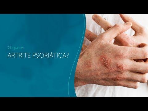 Eczema que fica marrom