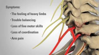 Cervical Laminectomy - Patient Education