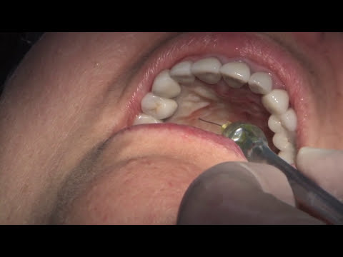 Acromioclavicularis ízületi fájdalom