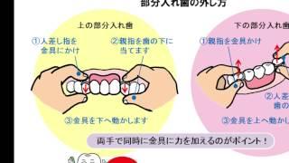 金具が2つある部分入れ歯を外すときは、金具を1つずつ外す?