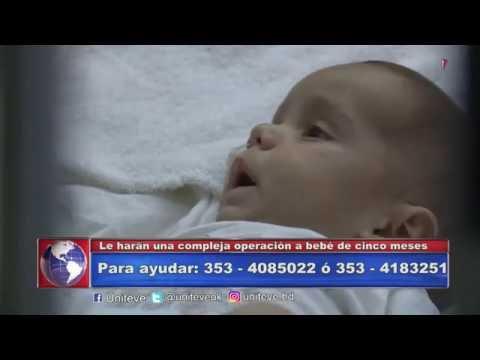 Le harán una compleja operación a bebé de cinco meses