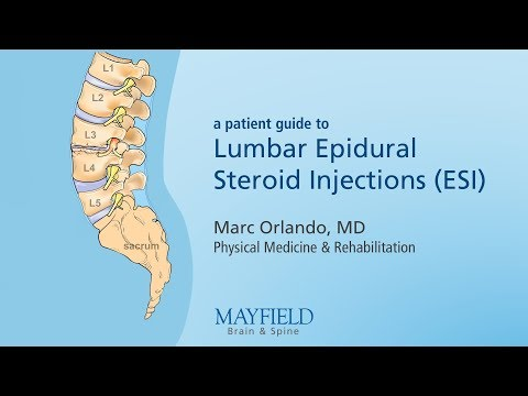 Restaurarea preparatelor articulațiilor țesutului cartilaj