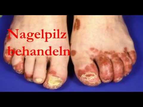 Gribok des Nagels auf den Beinen die ergebnisreiche Behandlung