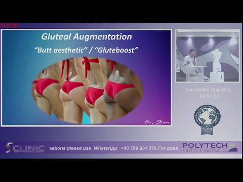 Dibdib implants store
