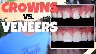 Dental CROWNS Vs. Porcelain VENEERS | Is The Dental Veneers Procedure Worth It?!?