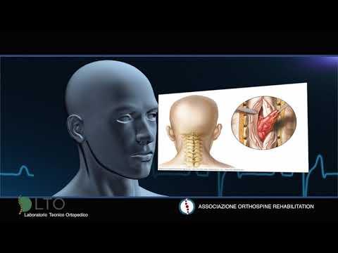 Causa del dolore acuto alla schiena