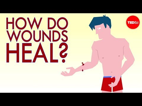 Video How a wound heals itself - Sarthak Sinha